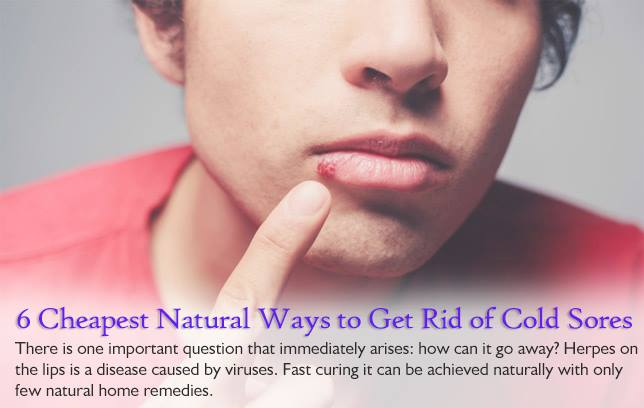 Rid off painful Cold Sores Naturally