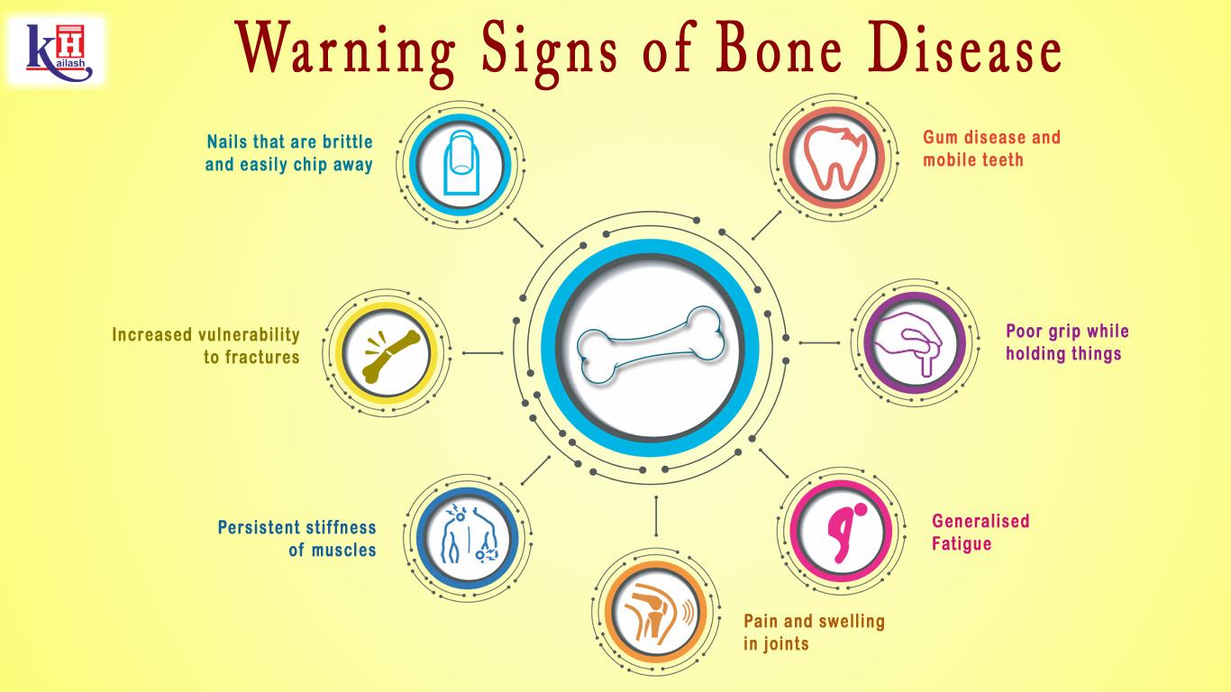 7 Warning Signs of Bone Disease