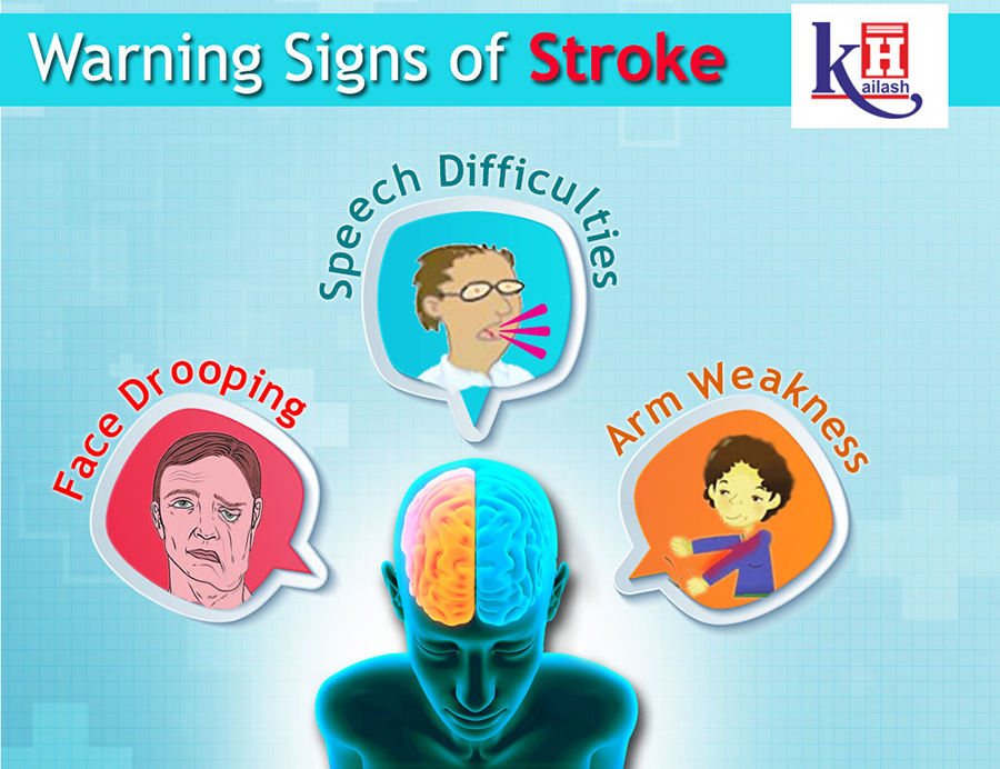 Know about the warning signs of Stroke