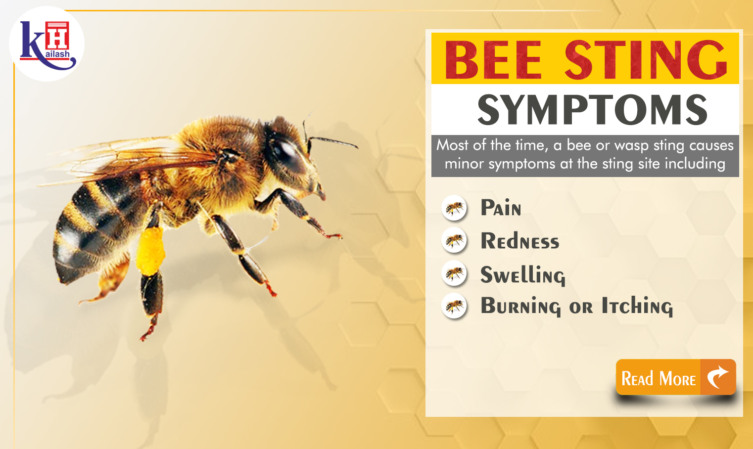 Bee Sting Allergy Symptoms of Anaphylaxis