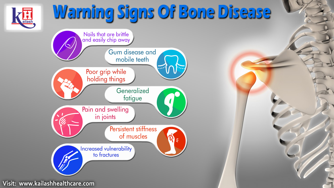 Find Some Warning Signs of Bone Disease