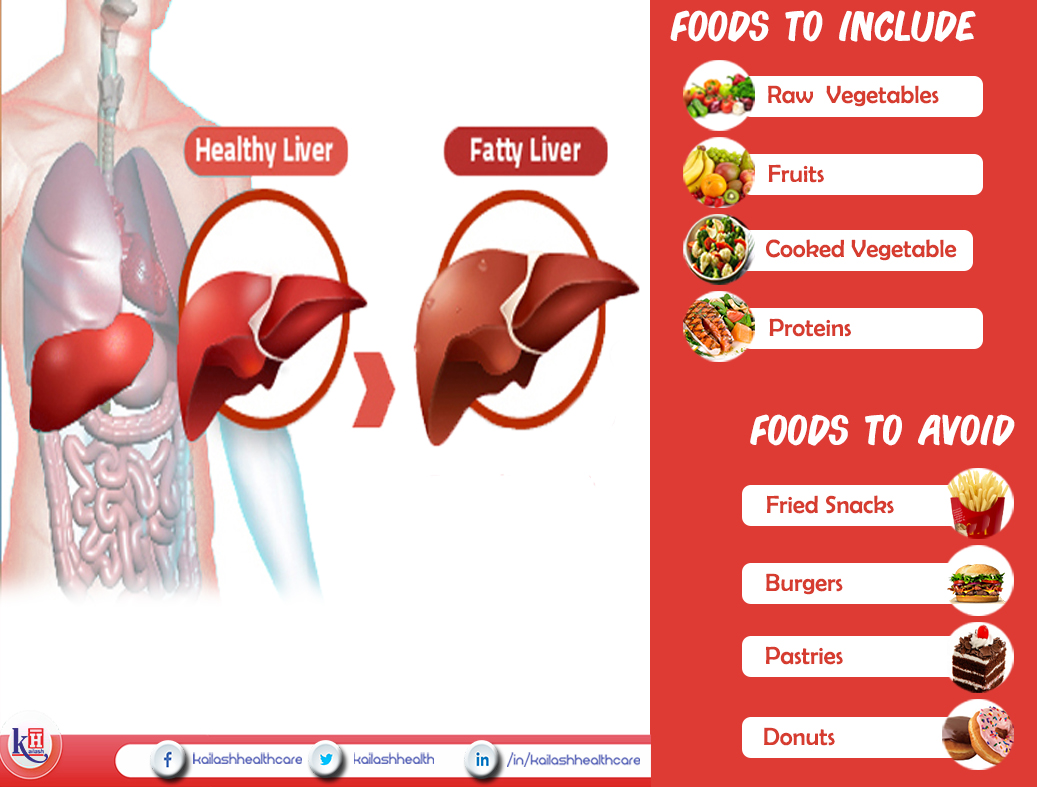 Fatty Liver Diet: Foods to Include & Avoid