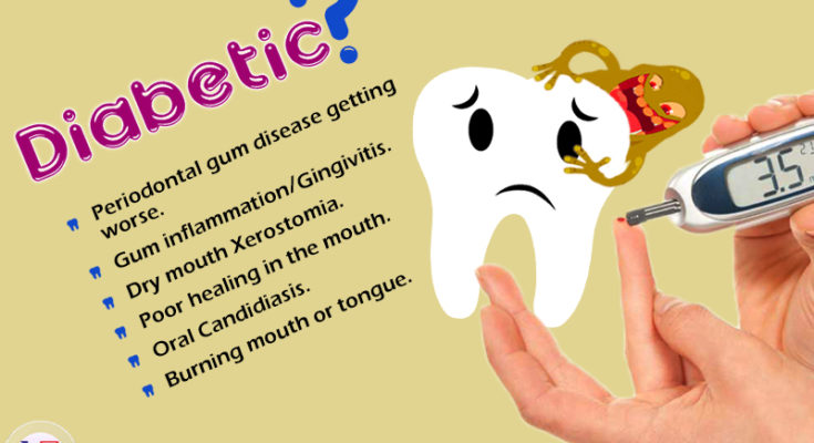 If you are Diabetic you may experience these Dental Problems