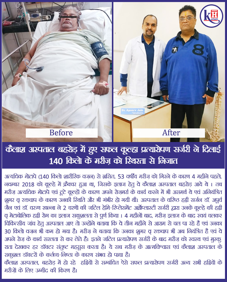 Successful Hip Replacement Surgery at Kailash Hospital, Behror treats 140kg overweight patient's hip fracture & immobility