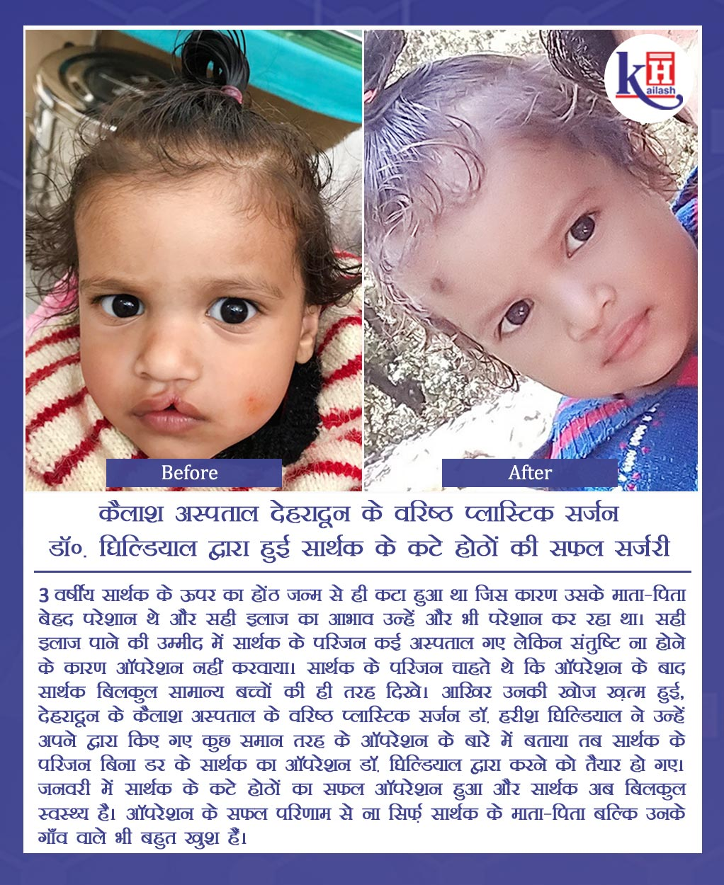 Successful Surgery of patient's Cleft Lips performed by Sr. Plastic Surgeon of Kailash Hospital Dehradun