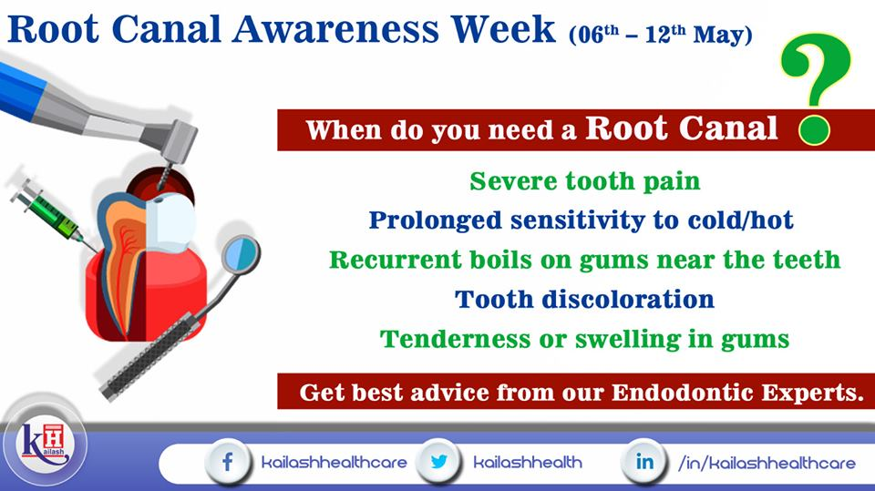 If you are facing any of these symptoms you need a Root Canal Dental Treatment. Consult an Endodontist.
