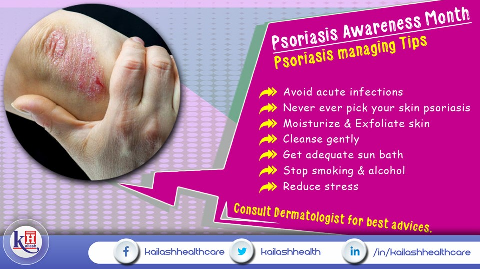 If you're already suffering from Psoriasis or any skin diseases, follow these managing tips to prevent severity.