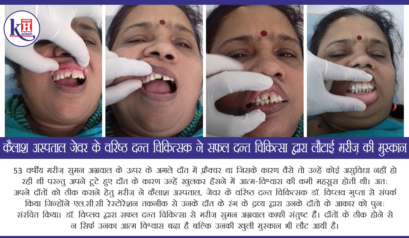 53yr old patient gets back her beautiful Smile after Successful Dental Treatment at Kailash Hospital, Jewar