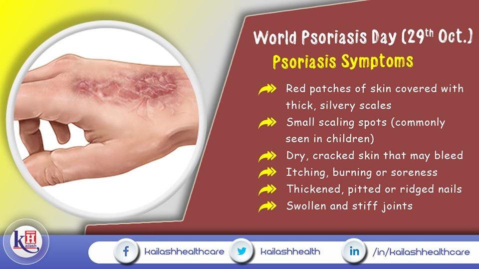 Psoriasis is a serious skin disease that damages skin layers. Know about its symptoms & consult our Dermatologists.
