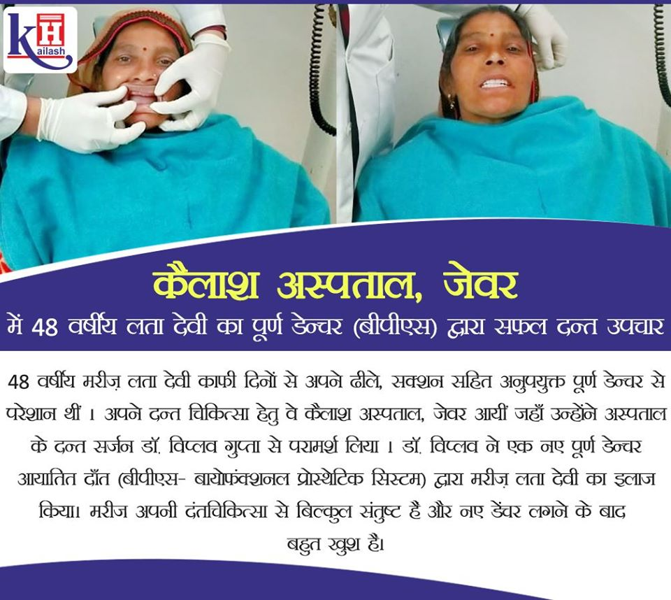 Successful Complete Dentures (BPS) Treatment of 48 yr old patient kailash hospital, Jewar