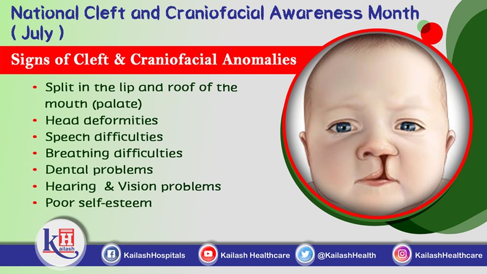 Babies born with Congenital anomalies like Cleft Lip/ Palate or Craniofacial deformities show many early signs which can be managed by therapies or surgeries. Learn about them from our experts.