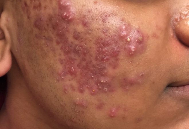 Acne: Acne Causes, Acne Types, Acne Treatment and Tips