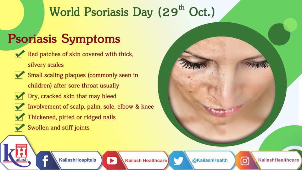 Psoriasis may sometimes be ignored as a regular rash or allergy leading to a severe psoriatic skin condition.