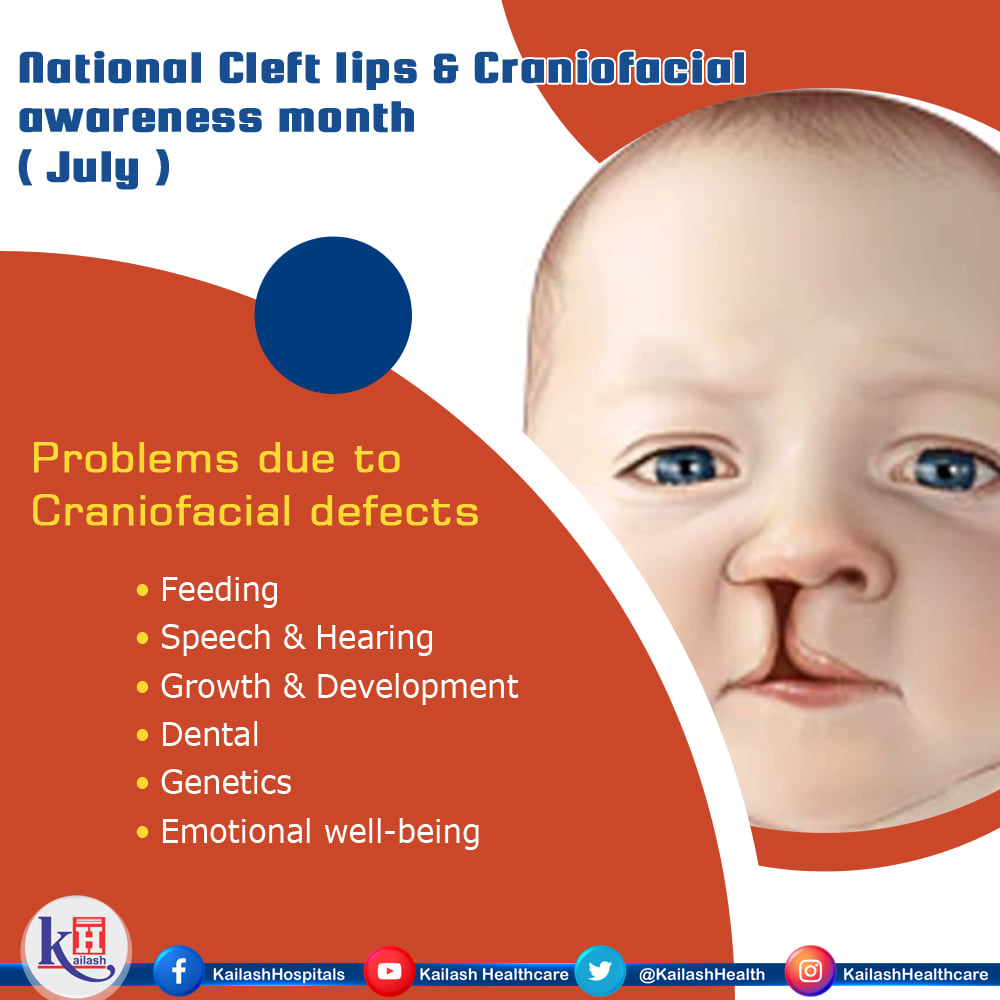 Children with Cleft or Craniofacial disorders experience some problems like feeding difficulties and ear infections until the problem is treated.
